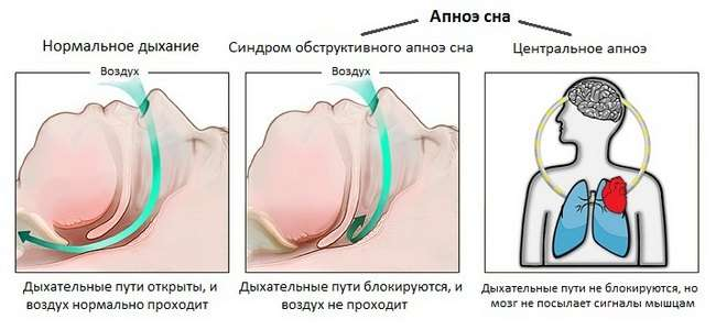 Апное: симптоми і лікування