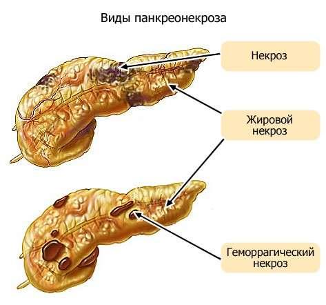 Панкреонекроз: симптоми і лікування
