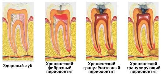 Періодонтит: симптоми і лікування