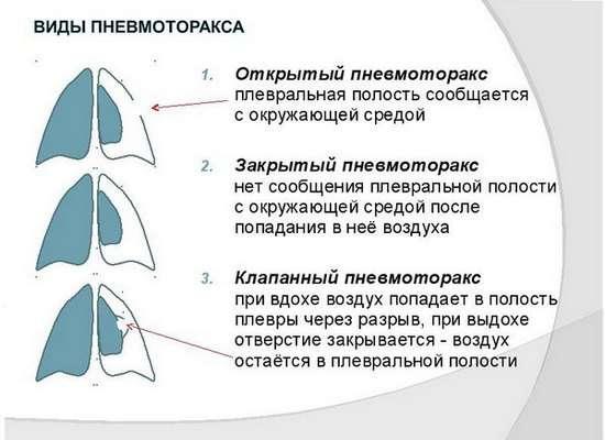Пневмоторакс: симптоми і лікування