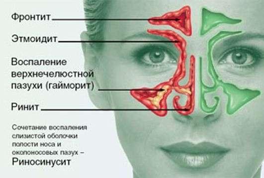 Риносинусит: симптоми і лікування