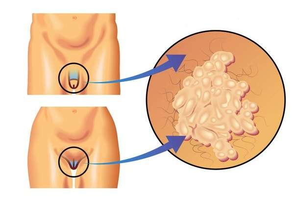 Вірус папіломи людини: симптоми і лікування