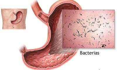 Гастроентерит: симптоми і лікування