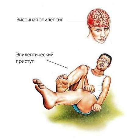 Епілепсія у дітей: симптоми і лікування