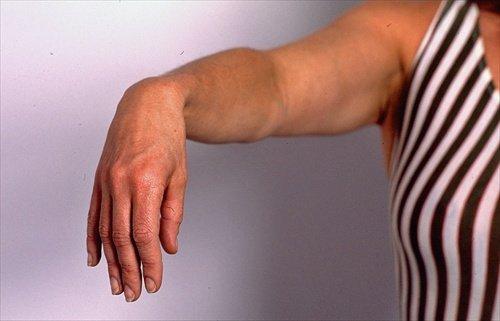 Невропатія променевого нерва: симптоми і лікування