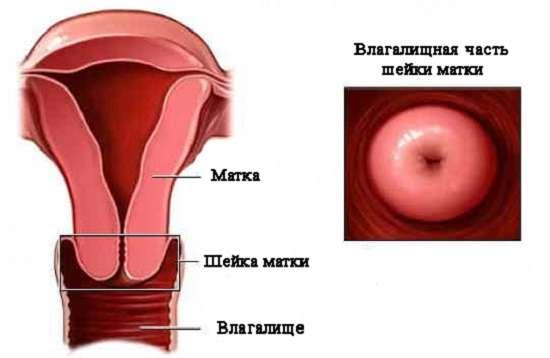 Цервіцит: симптоми і лікування