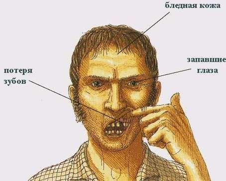 Цинга: симптоми і лікування