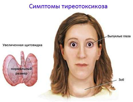 Тиреотоксикоз: симптоми і лікування