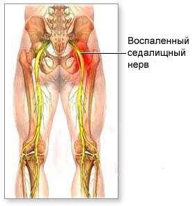 Ішіас (запалення сідничного нерва): симптоми і лікування