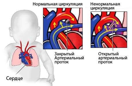 Порок серця у дітей: симптоми і лікування