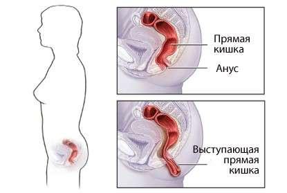 Випадання прямої кишки: симптоми і лікування