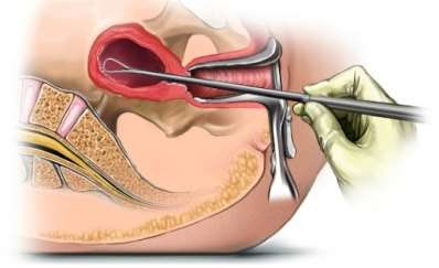 Гіперплазія ендометрія: симптоми і лікування