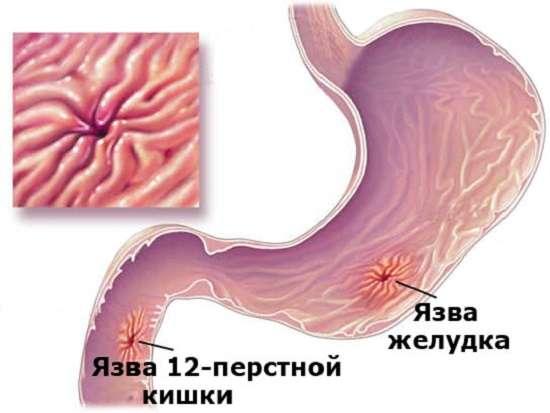 Виразка шлунка: симптоми і лікування