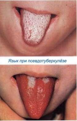 Псевдотуберкульоз: симптоми і лікування