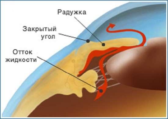 Глаукома: симптоми і лікування