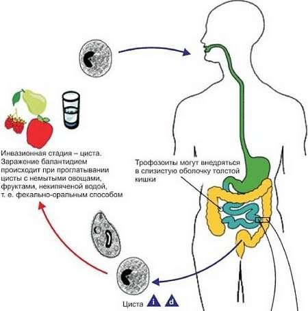 Балантидіаз: симптоми і лікування