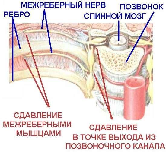 Грудний остеохондроз: симптоми і лікування