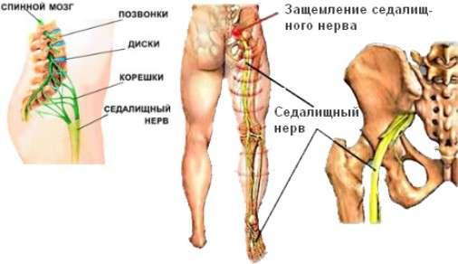 Защемлення сідничного нерва: симптоми і лікування