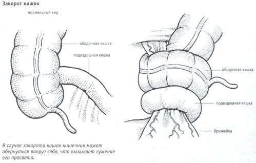 Заворот кишок: симптоми і лікування