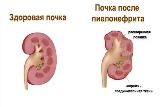 Пієлонефрит у дітей: симптоми і лікування