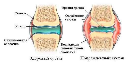 Хронічний артрит: симптоми і лікування