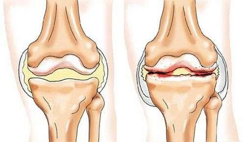 Артропатія: симптоми і лікування
