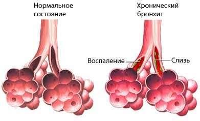 Хронічний бронхіт: симптоми і лікування