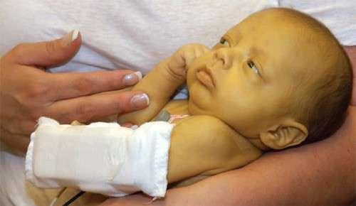 Жовтяниця: симптоми і лікування