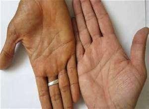 Стеатогепатит: симптоми і лікування