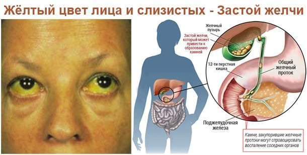 Застій жовчі: симптоми і лікування