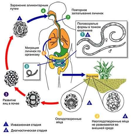Аскариди: симптоми і лікування