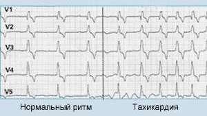 ЭКГ при учащённом сердцебиении
